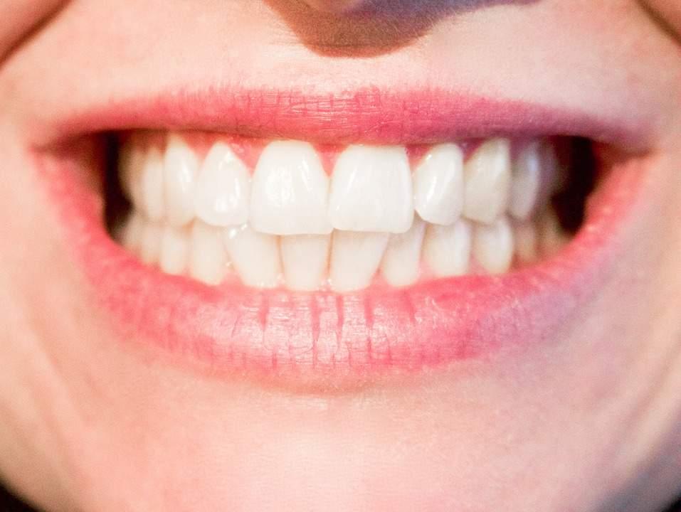 evo teeth