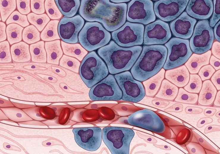 Growing cancer cells (in purple) are surrounded by healthy cells (in pink), illustrating a primary tumor spreading to other parts of the body through the circulatory system.  Credit: Darryl Leja, National Human Genome Research Institute